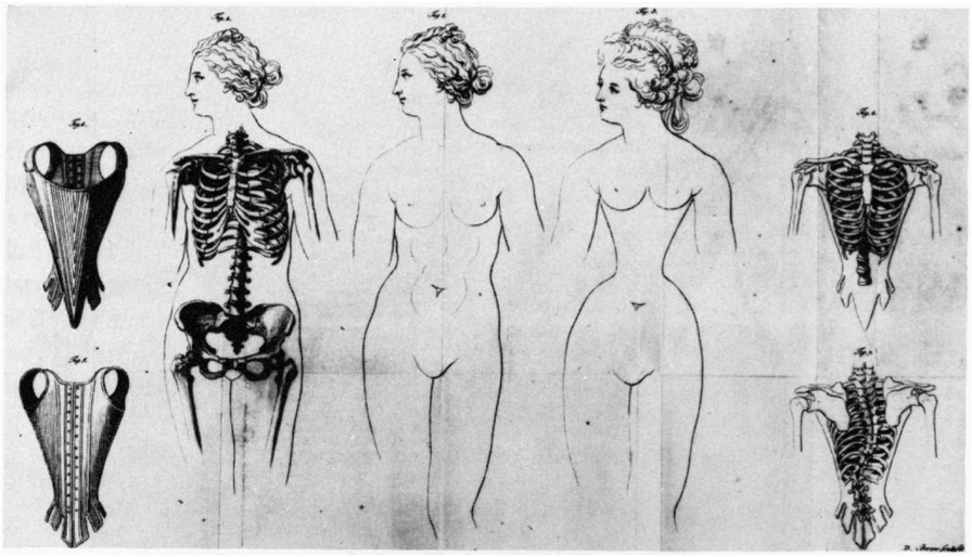 effects of corset
