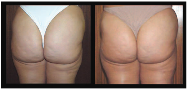 cellulite change